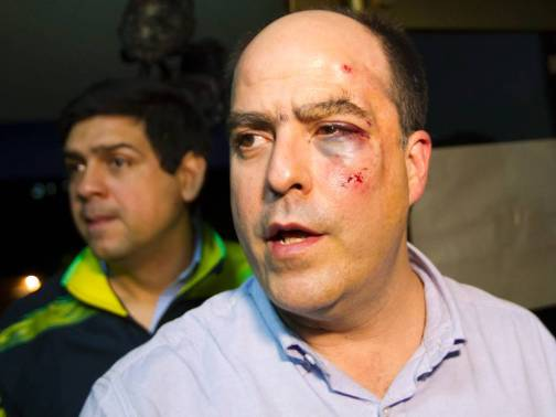 El diputado opositor Julio Vargas tras ser agredido //http://www.24horas.cl/